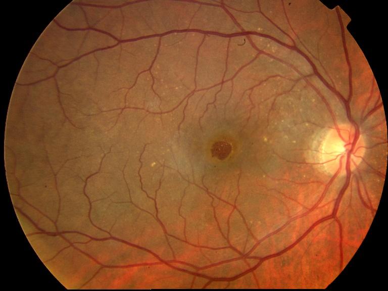 agujero macular