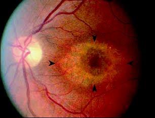 quimioterapia ocular