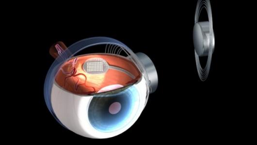 retina artificial